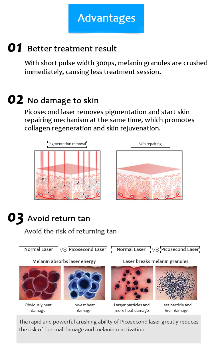 1064QPH01 High Quality Picolaser/Picosecond Laser Pigment Lesions Tattoo Removal Luxurious Equipment
