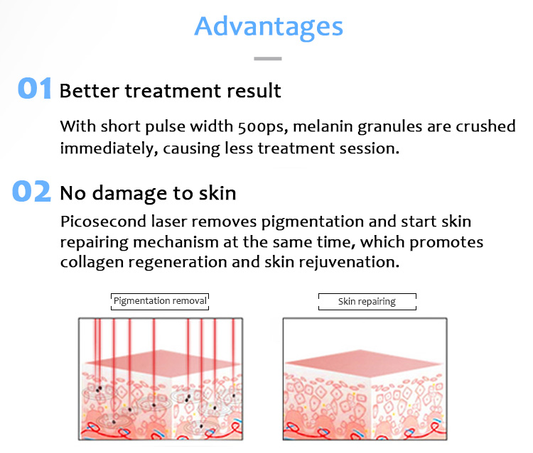 Laser Tattoo Removal Machine, Picosecond Laser, Pigment Lesions Removal Machine,1064pvyl+