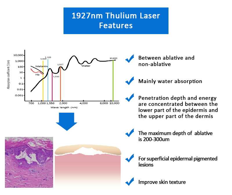 1927nm Thulium Laser, Facial & Skin Resurfacing Machine, Scars & Acne Scars Removal Machine, 1927KK