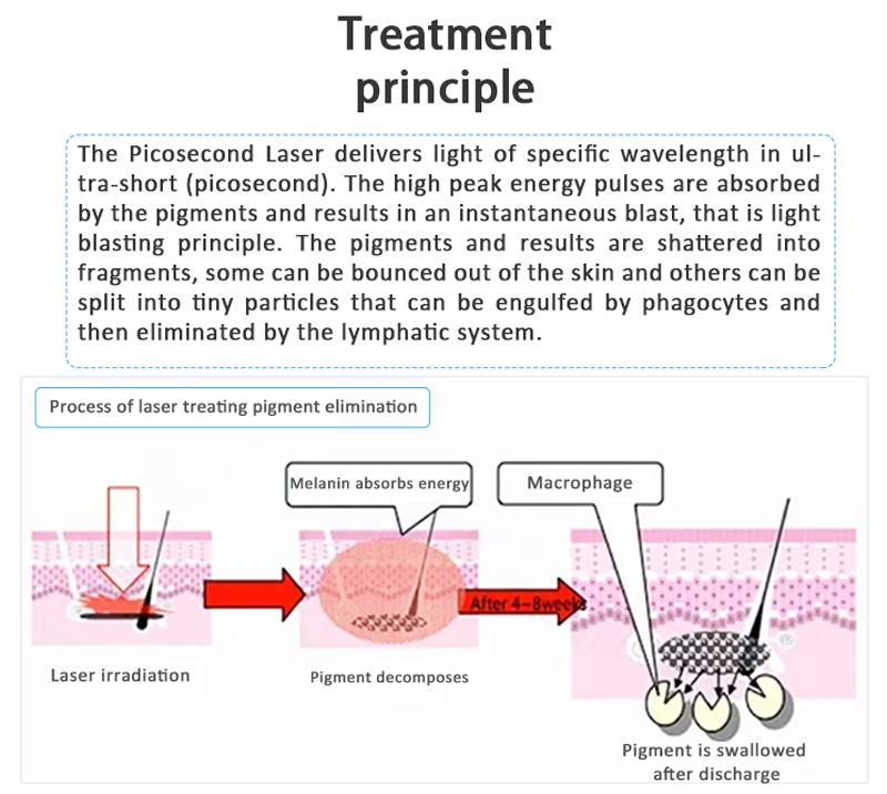 Bigpic V+ Cost-Effective Picolaser/Picosecond Laser Pigment Lesions Tattoo Removal Machine
