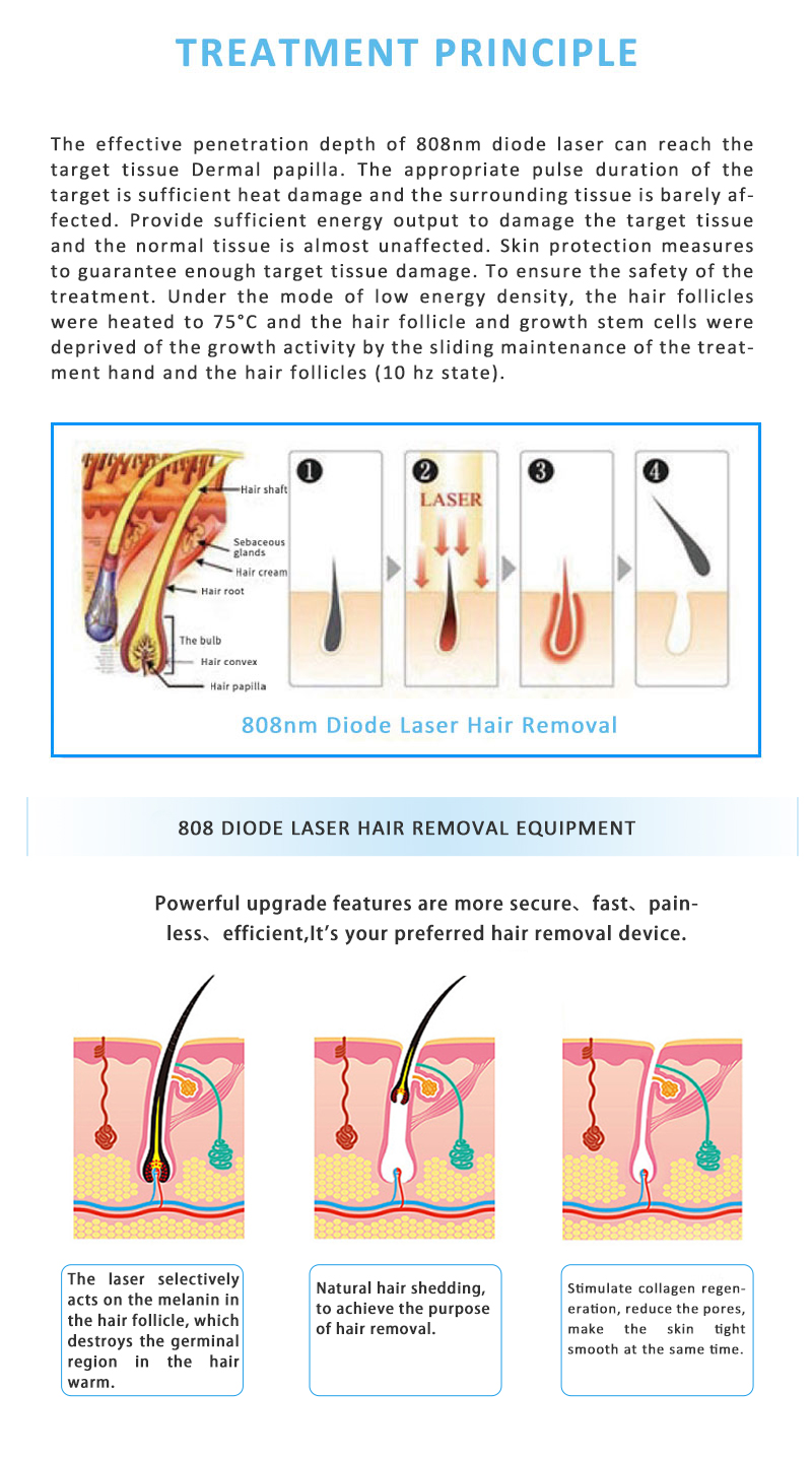 808KK-03 808nm Diode Laser Permanent Hair Removal Skin Rejuvenation Beauty Equipment