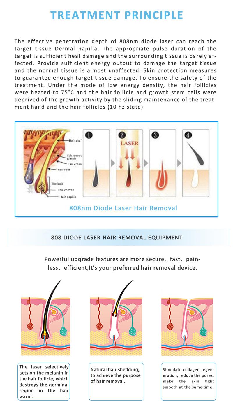 808nm Diode Laser SHR Permanent Hair Removal Skin Rejuvenation Machine