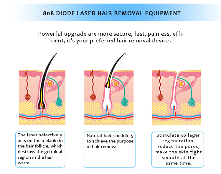 808VEH 808nm Diode Laser Permanent Hair Removal Machine