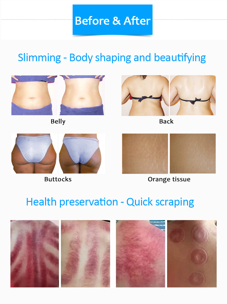Healtech-VII Slimming Magic Skin Tightening Reduce Cellulite Machine