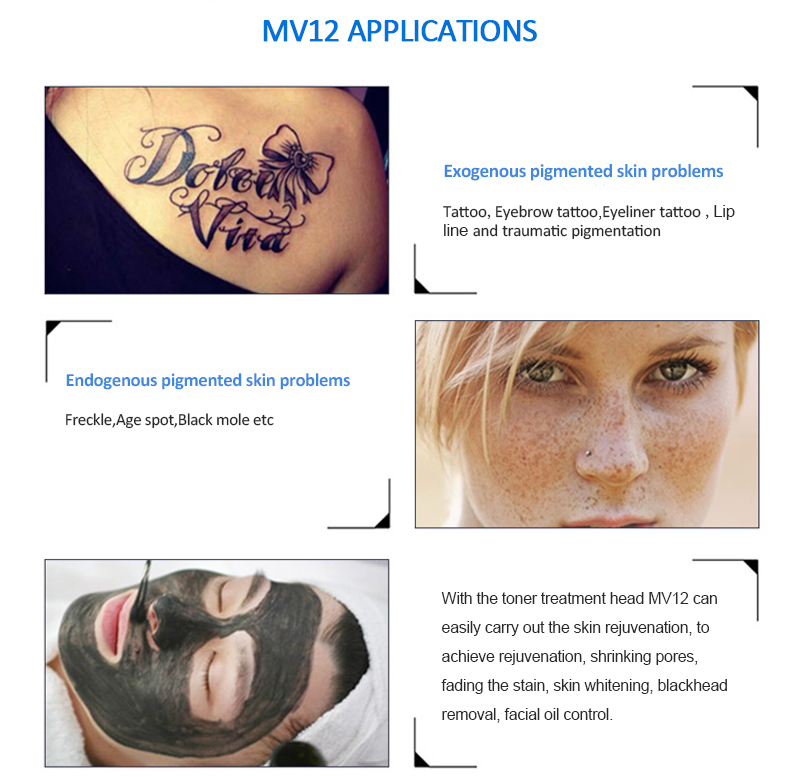 MV12 Mini Q-Switched Nd:YAG Laser Pigment Lesions & Tattoo Removal Skin Rejuvenation Beauty Salon Machine