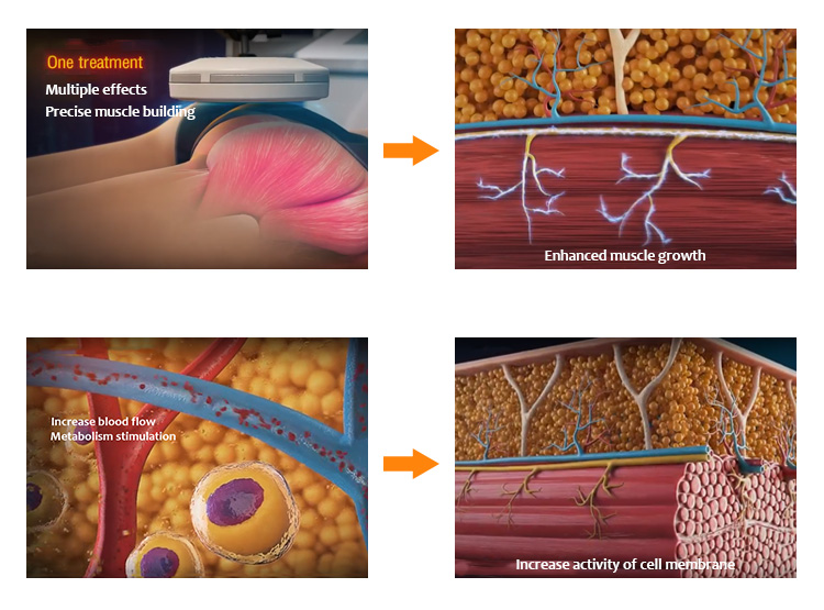 Body Slimming & Cryolipolysis, Body Slimming Machine, Cryolipolysis Machine, MX-GM01