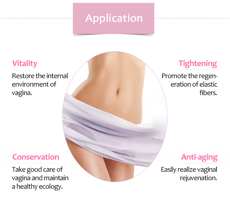 SM-Smart Portable HIFU Vaginal Tightening Non-Invasive Vaginal Treatment Beauty Machine