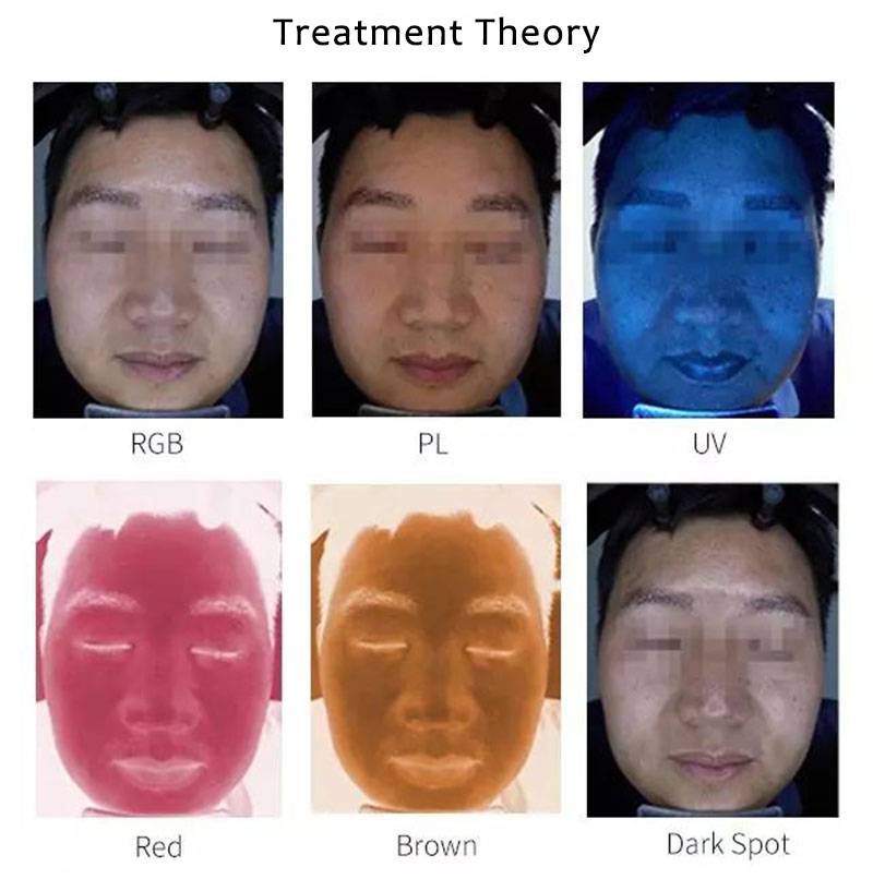 TC20s Six-SpectrumFacial Magic MirrorSkinCare AnalyzerAnalyze Facial Skin Conditions