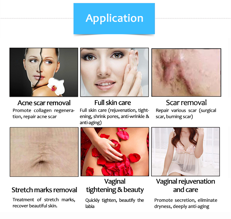 SM10600CHb Vaginal Tightening 10600nm CO2 Fractional Laser Skin Regeneration Stretch Mark/Scar Removal Machine