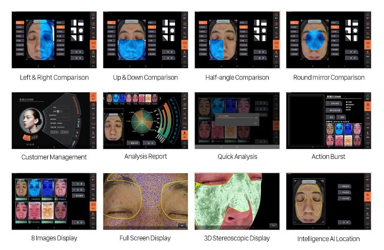 D8S 3D Facial Skin Analyzer With 8 Kinds Of Images And Light Sources