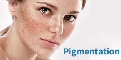 pigmentional