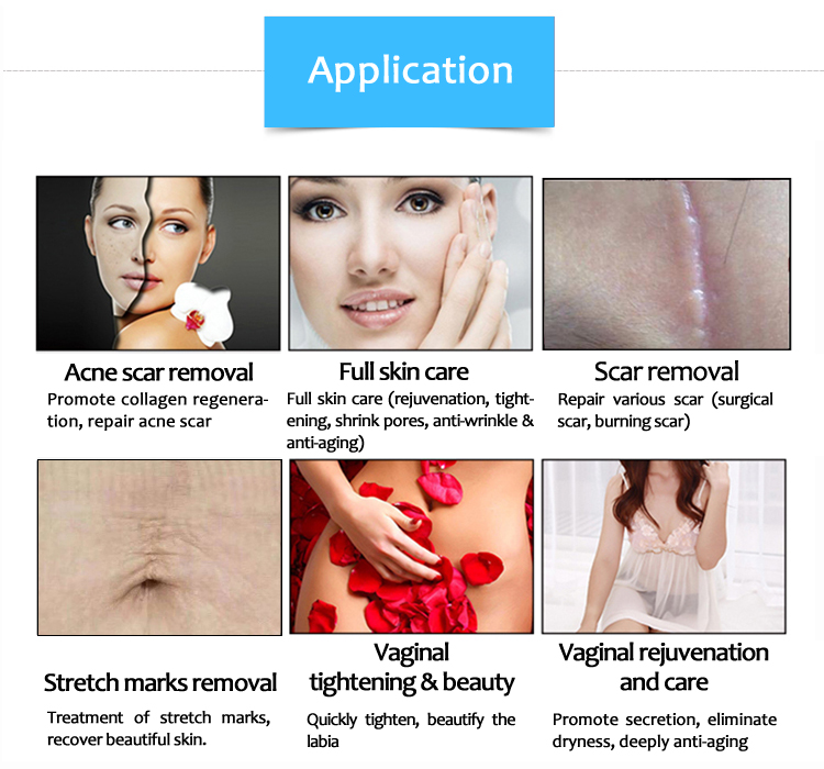 SM10600KKlb Vaginal Tightening Stretch Mark/Scar Removal Anti-Wrinkle Skin Resurfacing Machine