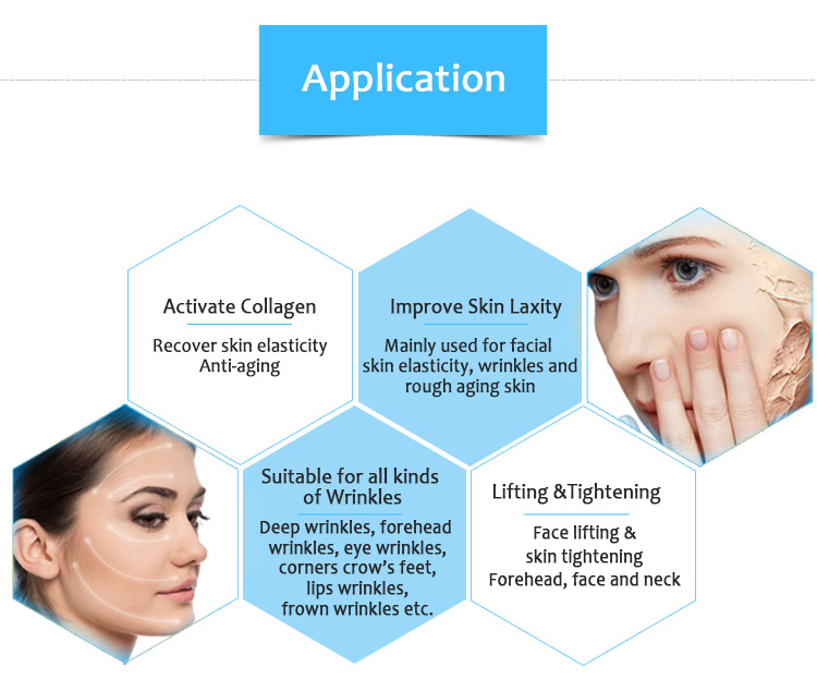 Ulove01 HIFU Wrinkle Removal Skin Tightening Anti-aging Face lifting Beauty Salon Equipment