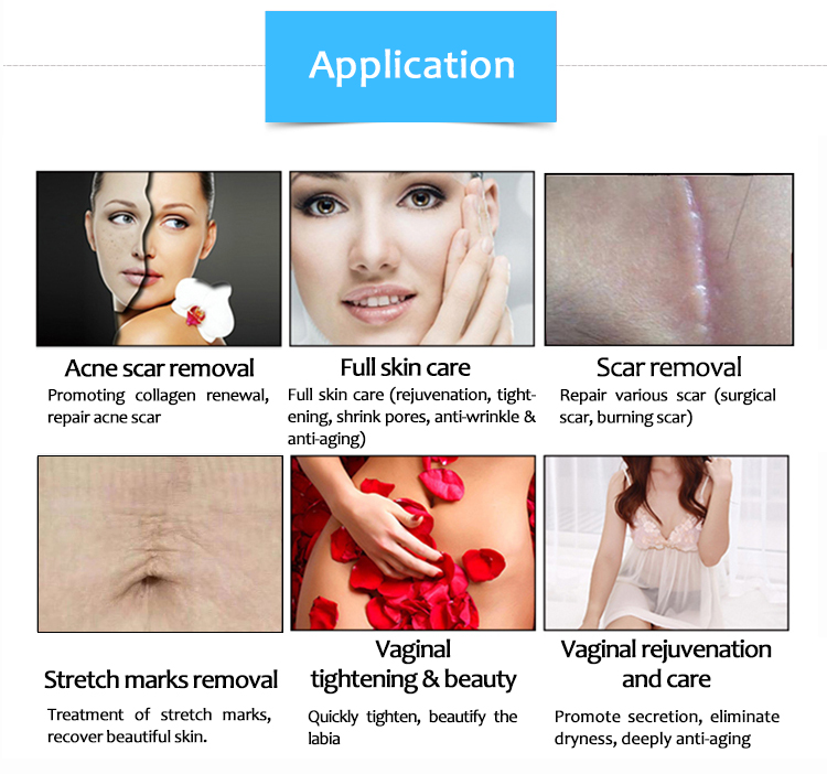 SM10600ZHb Vaginal Tightening Skin Resurfacing Anti-Aging Scar Removal Beauty Machine